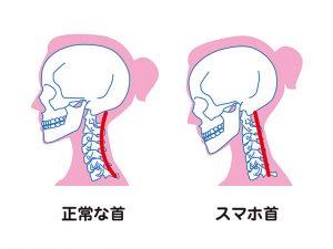 正常の首とスマホ首の比較です。